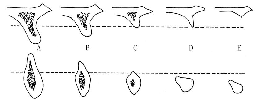 Анатомія для імплантологів-початківців