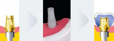 Клініко-лабораторні етапи виготовлення одинарних коронок з опорою на імплантати на різних типах абатментів