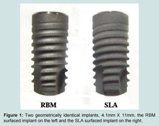 Яка поверхня імплантатів краща SLA чи RBM ?