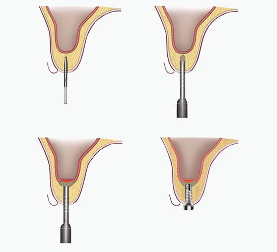 Закритий синус-ліфтинг без використання кісткових трансплантатів