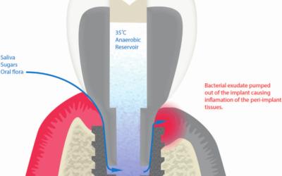 Герметизація шахти гвинта з'єднання імплантат-абатмент